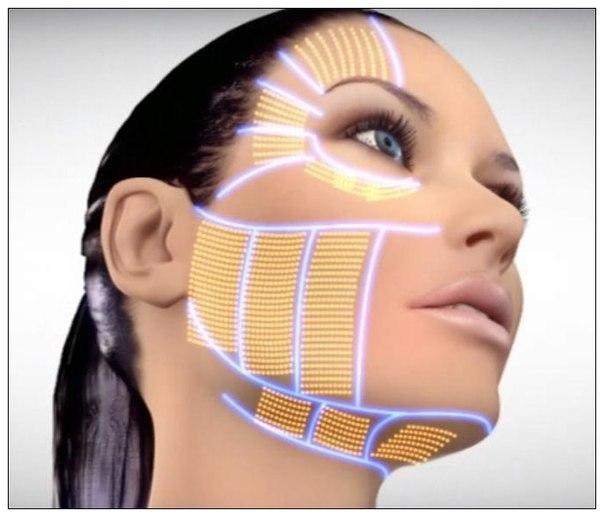 fotoregenerare-faciala2-free-style-salon