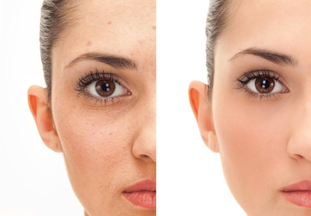 microdermoabraziune faciala - free style salon -salon cosmetica bucuresti